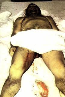 Arregi, mort en mans dels torturadors espanyols en 'democràcia'