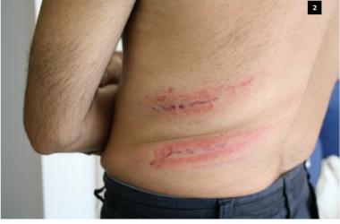 [FOTOS] Es fan públiques les primeres fotografies dels ferits en la càrrega policial de Mataró