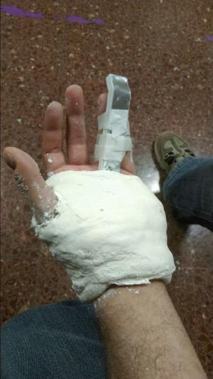 La policia va trencar la mà al periodista Jesús Rodríguez